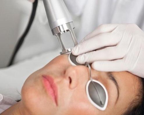 Laser Φωτοανανέωσης Αντιγήρανσης Δέρματος
