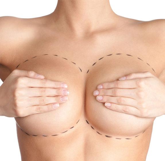 Πλαστική Στήθους - 3
