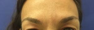 Άνω Βλέφαρο - Πριν